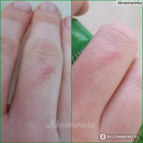 Как видно, заживлению рубцов и шрамов гель явно не способствует