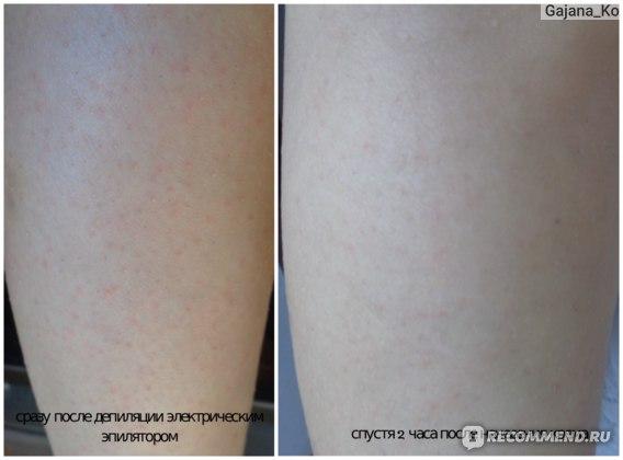 """Пробиотический крем для тела Eco Life Chrisal  """"Skin Repair"""" фото"""