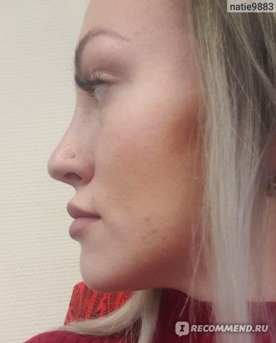 Увеличение губ препаратом Belotero фото