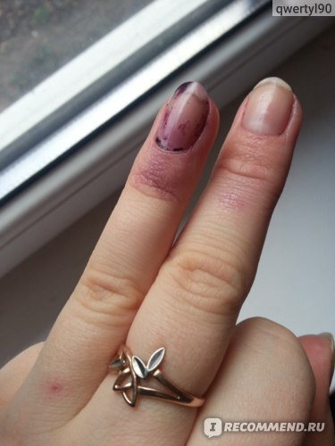 Лак для ногтей Ноготок  фото