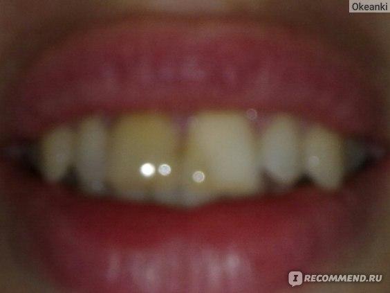 (фото не удачное, но другого нет)По левому зубу можете оценить какой был цвет, а второй на половину белый в нем уже временная пломба с препаратом. И зуб начал отбеливаться