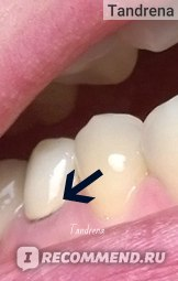 Зубные коронки из металлокерамики фото