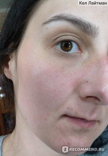 Крем-гель от отеков и темных кругов Icon Skin фото