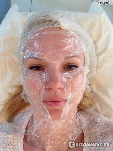 Инъекции гиалуроновой кислоты IAL-System. Биоревитализация кожи. фото
