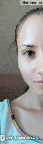 Микропилинг для лица Белита-Витэкс Zone stop ACNE очищающий фото