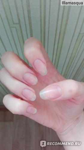 Укрепитель ногтей Умная Эмаль ультра плюс фото